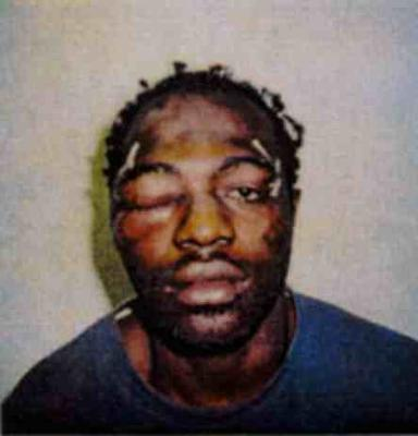 Rodney King after the Incident